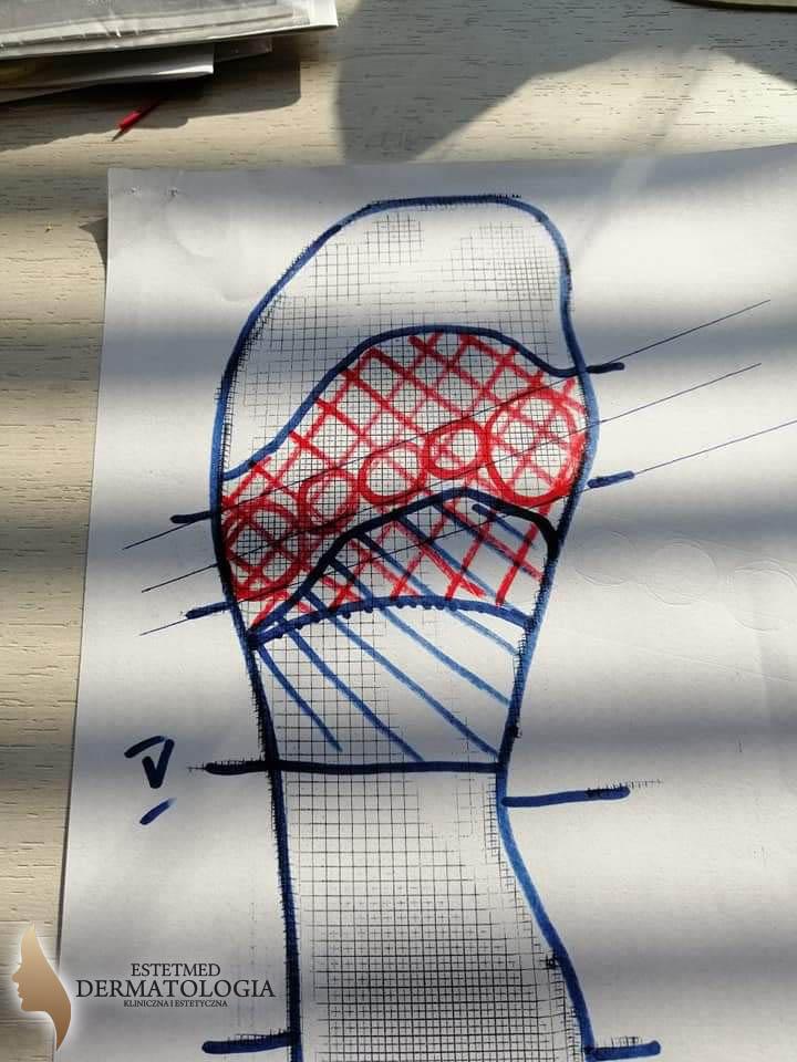 Indywidualne wkładki ortopedyczne - EstetMed