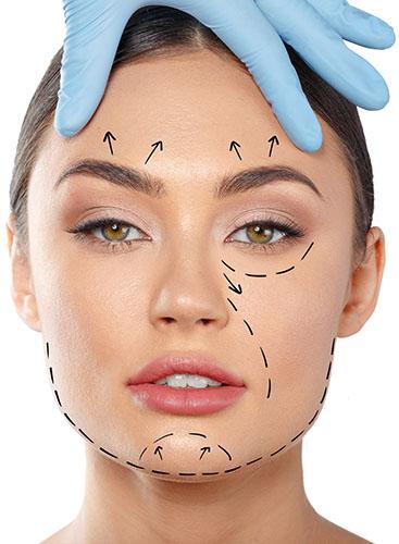 Owal twarzy - EstetMed
